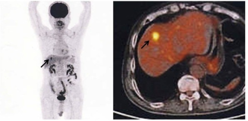 18Fluorine-fluorodeoxyglucose positron emission tomography (FDG-PET) findings. FDG-PET showed strong uptake in the liver (arrow). No other abnormal uptake was observed.