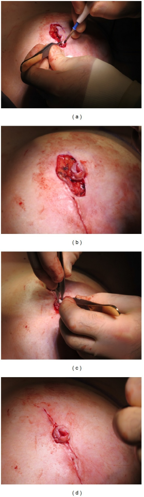 Intraoperative pictures. (a) Skate flap comprised of skin and fatty tissue is cut and lifted along the surgical markings; (b) the ends of the flap are brought together and sutured to allow for cylinder placement; (c) the cylinder is carefully placed inside the flap, (d) resulting in the cylinder being securely wrapped by vascularized skin tissue.