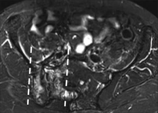 Radiation changes. A 59 year old female with history of endometrial cancer Salpingohysterectomy and radiation therapy. Axial short tau inversion recovery (STIR) MRI image shows a regional distribution of bony edema in the iliac bone and sacrum with demarcated borders (dotted lines), indicating the radiation field
