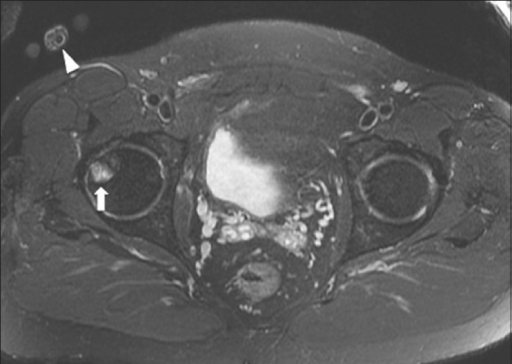 Wrap-around/aliasing in MRI. A 47 year old male with lower buttock pain. Axial STIR MRI image shows a wrap-around/aliasing artifact from right hand (arrowhead) and mimicking a focal lesion of right femoral head (arrow)