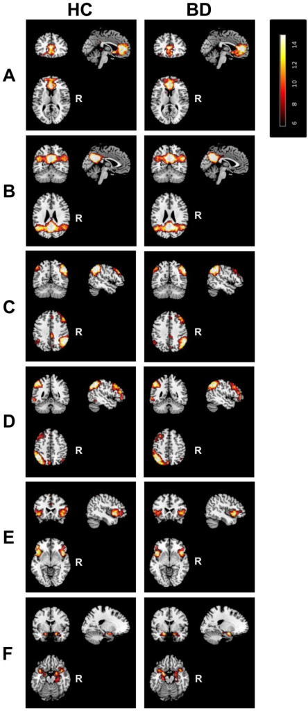 Resting state networks of interest.Illustration of one-sample-t-test maps of the anterior and posterior default mode network, right and left frontoparietal network, the salience network, and the meso/paralimbic network identified in the control (left column) and patient (right column) group. Maps are thresholded at P<0.05 (whole-brain FWE corrected). R, Right.