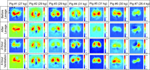 Electrical impedance tomography images at the end of inspiration from seven pigs during automatic ventilation therapy using the ARDSNet protocol. EIT, electrical impedance tomography.