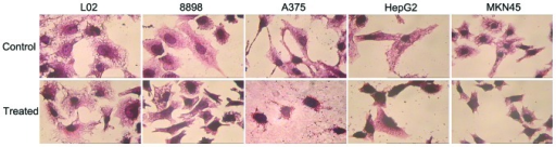 Hematoxylin and eosin staining of 8898, A375, HepG2 and MKN45 cells cultured in the presence or absence of the respective IC50s of As4S4 for 36 h and L02 cells treated with 10 μg/ml As4S4. Condensed and fragmented nuclei were observed in the As4S4-treated tumor cells, but not in the L02 cells. Magnification, ×400. As4S4, arsenic sulfide.