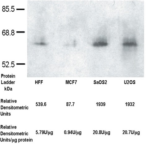 Osteosarcoma cells overproduce OTR. Western-blot of OTR present in whole cell protein extracts obtained from HFF, MCF7, SaOS2 and U2OS cells, respectively. The total amount of protein loaded onto gels was adjusted to 93 g per each well. The blots were developed according described methods and subjected to quantitative analysis. The densitometric data indicate (Relative Densitometric Units, U) that both osteosarcoma cell lines tested produce as much as 3.6× more OTR as HFF cells and 20 more OTR in comparison to MCF-7 cells.