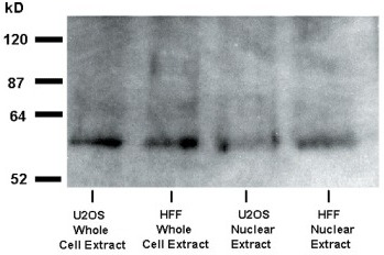 Western-blot analysis of OTR in U2OS and HFF cells. The cells were treated with OT 10−7 M for 15 min. Following the hormone treatment, the cells were used either for the isolation of total protein (whole cell extract) or for isolation of nuclei. The purified nuclear fraction (procedure 1 in the 'Methods') was then used for isolation of total nuclear protein extract.