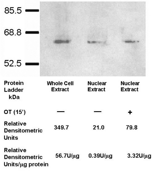 Treatment with OT increases translocation of OTR into nuclei of HFF cells. Western-blot indicating the presence of the OTR in nuclear protein fractions (procedure 1, 'Methods') of both control and OT-treated (10−7 M, 15 min) HFF cells. The relative densitometric units (U) per microgram of protein indicate approximately 10 times higher level of OTR in OT-treated cells. The total amount of protein loaded onto the wells is as follows: whole cell extract (60.75 g), nuclear extract (54 g) and nuclear extract from cells treated with OT (24 g).