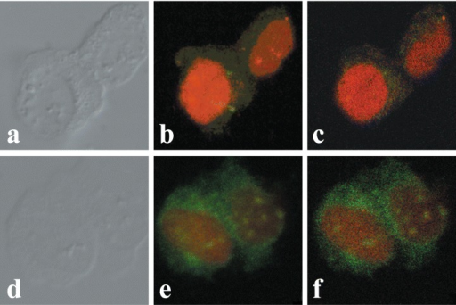 Association of OTR with the perinuclear and nuclear fractions of MCF-7 cells. A–C depict control cells and D–F represent OT-treated (10−7 M for 15 min) cells. A and D are phase contrast images, B through F are confocal images of immunofluorescence with OTR-Ab, FITC-labeled conjugate and propidium iodide. B and E are stacked confocal images while C and F are a single midsection images.