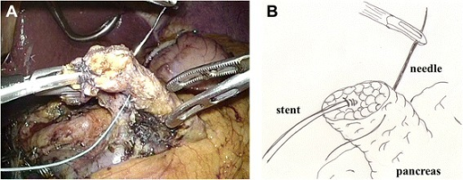 Two anchoring sutures were placed in the remnant pancreas, 2 cm distal to the transection plane. The main pancreatic duct was already stented with a 4-Fr polyvinyl catheter. A: photo, B: illustration