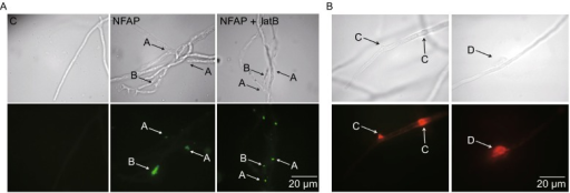 Localization ofNeosartorya fischeriantifungal protein (NFAP) inAspergillus nidulans. (A) Indirect immunofluorescence staining of Aspergillus nidulans FGSC A4 hyphae with rat anti-NFAP serum and FITC-conjugated swine anti-rat IgG, after NFAP treatment for 16 h at 37°C. NFAP accumulation in A: hyphal fracture and twist; B: cell-wall bubble. C: untreated control, NFAP: NFAP-treated (25 µg/mL), NFAP + latB: NFAP- (25 µg/mL) and latrunculin B- (5 µg/mL) treated hyphae. (B) Propidium iodide (PI) staining of Aspergillus nidulans FGSC A4 hyphae after 25 µg/mL NFAP treatment for 90 min at 37°C. Red fluorescence at hyphal bubble C and around hyphal fracture D indicates membrane disruption and outflow of the hyphal/cell content. Upper images, light microscopy; lower images, fluorescence microscopy of indirect immunofluorescence staining (A) and of PI staining (B)