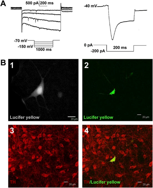 Identification of VTA-DA neurons in rats.(A) Electrophysiological properties of VTA-DA neurons. Left panel: representative traces showing a large hyperpolarization-activated current (Ih) in whole-cell voltage-clamp recording. Holding potential: −70 mV. Right panel: representative traces showing a large voltage 'sag' when hyperpolarized in whole-cell current-clamp recording. Holding current: 0 pA. (B) Immunohistochemical labeling of identified VTA-DA neurons. Panel 1: images of a Lucifer yellow-labeled neuron from the ventral tegmental area (VTA) after whole-cell patch-clamp recording under infrared differential interference contrast and fluorescent microscopy. Panel 2: the same neuron labeled with Lucifer yellow (green color) under confocal microscopy. Panel 3: VTA images showing tyrosine hydroxylase (TH)-positive neurons after immunostaining. Panel 4: Lucifer yellow-filled neuron co-labeled with TH. Scale bar: 20 μm.DOI:http://dx.doi.org/10.7554/eLife.09275.003