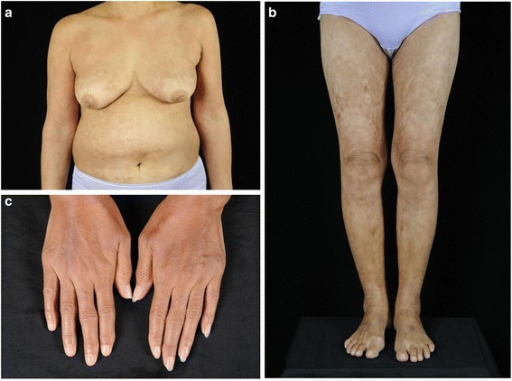 Clinical presentation. a, b Widespread reticulate hyperpigmentation over the trunk and extremities with discrete erythematous indurated plaques over the chest wall and anterior abdomen, c Sclerodactyly with cool periphery of all fingers