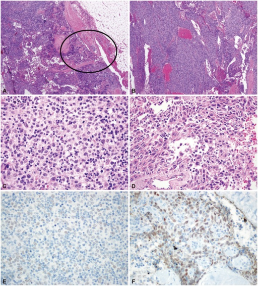 Pathologic findings of case 2. Focal thymic carcinoma with an abundant thymoma (thymoma type B3) component. Low-power view showing a multinodular mass with extension to the peritumoral fat tissue [circle; hematoxylin-eosin stain (H-E); magnification, ×12] (A). The tumor is composed of abundant type B3 tissue (B: H-E; magnification, ×40; C: H-E, magnification, ×400) (B, C) and a focal thymic carcinoma component (squamous cell carcinoma) in the circled area (H-E; magnification, ×400) (D). Strong immunoreactivity for p63, a squamous cell differentiation marker, is found in the thymic carcinoma area (p63 immunostaining; magnification, ×400) (E). There is no p63 reactivity in the conventional thymoma B3 area (p63 immunostaining; magnification, ×400) (F).