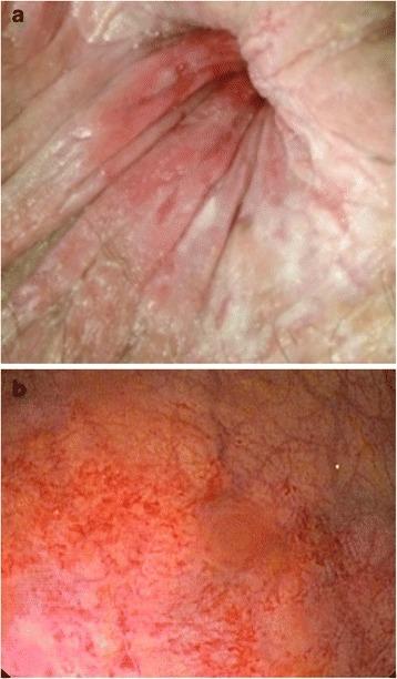 Anal Mucosa 52