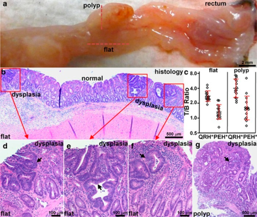 Validation of colonic dysplasia on pathology. (a) Excised colon from Figure 4 shows locations of flat lesions and polyp (dashed red lines), Bar = 2 mm. (b) Histology (H&E) of flat lesion shows nonpolypoid mucosal morphology and foci of low-grade adenomatous dysplasia (red boxes) separated by intervening regions of normal mucosa, Bar=500 μm. (c) Greater mean fluorescence intensities from polyps (n=15) and flat lesions (n=15) were found compared with those from adjacent normal mucosa, T/B ratio 4.0±1.7 and 2.7±0.7, respectively. For polyps, mean±s.d. of the T/B ratio (log2) for QRH*-Cy5.5 and PEH*-Cy5.5 was 1.90±0.60 and 0.62±0.77, P=4.1 × 10−4 by paired, two-sided t-test, respectively, and mean fold difference was 2.43. For flat lesions, the results were 1.39±0.34 and 0.36±0.47, P=7.4 × 10−6 by paired, two-sided t-test, and mean fold difference was 2.05. (d–f) Magnified view of red boxes in b shows histological features of low-grade dysplasia (arrows). (g) Histology (H&E) of polyp along vertical red line in a shows identical histological features of dysplasia. H&E, hematoxylin and eosin; T/B, target-to-background.