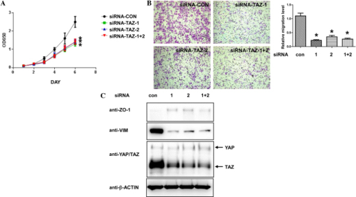 TAZ-knockdown inhibits cell proliferation and migration, and induces epithelial-mesenchymal transition in ovarian cancer cells. SKOV-3 cells were transfected with siRNA targeting human TAZ and control siRNA. (A) At 48 h post-transfection, the cells were plated into 96-well plates and the cell numbers were detected by Cell Counting kit-8 assay. (B) Migratory ability of the SKOV-3 cells, as detected by Transwell assay. Representative images (×100 magnification) of each group are shown. Crystal violet staining. *P<0.05 vs. con, Student's t-test. (C) Western blot analysis of SKOV-3 cells transfected with indicated siRNA 72 h post-transfection. OD, optical density; siRNA, small interfering RNA; CON, control; TAZ, tafazzin; ZO, zonula occludens; VIM, vimentin; YAP, yes-associated protein 1.