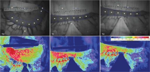 Frames obtained intraoperatively illustrating photo images (top row) of both the intact stomach and gastric tube reconstruction (GTR) analysis methodology with the targeted regions of interest. A matching sequence of typical laser speckle flux images (bottom row) is presented corresponding with the measurements of intact stomach (T0), after GTR (T1), and 20° reverse Trendelenburg GTR (T2).