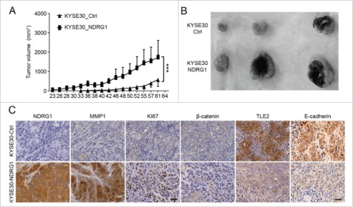 Ectopic overexpression of NDRG1 promotes tumor growth in vivo. (A) Tumor volume was measured every 2 to 3 d after subcutaneous inoculation with 5×106 cells/animal. KYSE 30 cells overexpressing NDRG1 (KYSE 30-NDRG1) enhanced the growth of the xenograft tumors compared with that of inoculations using parent cells (P < 0.001). (B) Photographs of the dissected xenografts using the same magnification scale. (C) Xenograft tissue was subjected to immunohistochemical analysis for NDRG1, MMP1, Ki67, β-catenin, TLE2 and E-cadherin, Scale bar, 100 μm.