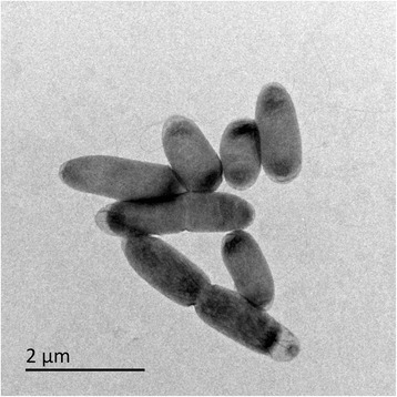 Transmission electron micrograph of T. tepidarius from a thiosulfate-limited chemostat (20 mM, 0.15 h-1). Cells were obtained from a chemostat-culture at steady-state by centrifugation and were washed and suspended in sterile 150 mM sodium chloride solution and applied to Formvar® and carbon coated copper grid before washing with further saline and staining in 50 mM uranyl acetate for 5 mins and washing again. Stained grids were visualized in a JEOL JEM-1400Plus transmission electron microscope, operating at 120 kV