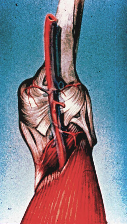 popliteal artery; genicular arteries; collateral ligaments; femur