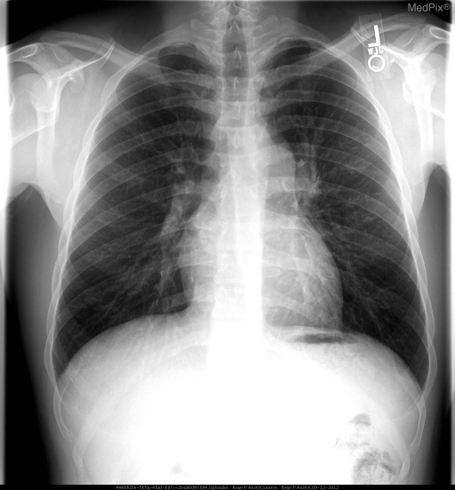 Enlarged pulmonary artery seen along left mediastinal border