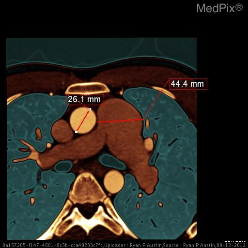 A ratio of the main pulmonary artery diameter to the aortic diameter that is greater than 1:1 is abnormal and should raise suspicion for chronic pulmonary hypertension or another cause for dilitation, such as pulmonary valve stenosis.