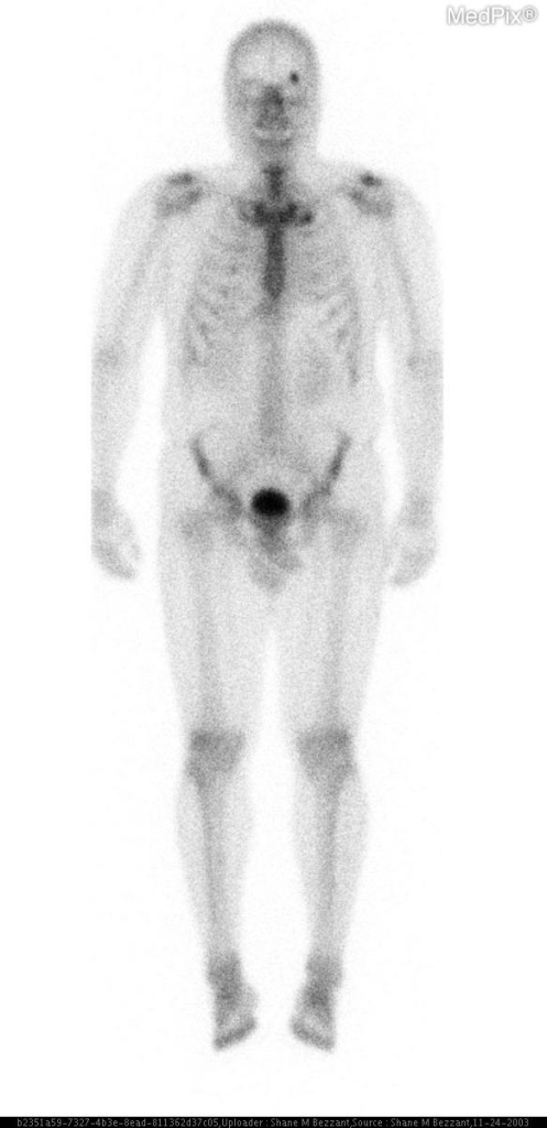 Anterior view of whole body bone scan shows intense focal uptake of the superolateral left orbit