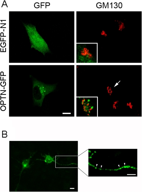Cellular localization of overexpressed wild type optineurin.A. RGC5 cells were transfected for 20 h, fixed and immunostained. When transfected with pEGFP-N1 (mock control, top, left panel), green fluorescence was observed in the entire RGC5 cells including the nucleus. When transfected with pOPTN-EGFP (OPTN-GFP, bottom, left panel), diffuse green fluorescence was likewise seen in the cytoplasm of RGC5 cells. In addition, bright granular or punctuate structures termed foci were also noted in the perinuclear region around the Golgi apparatus (stained with anti-GM130 in red). Insets show the enlarged and merged images in the perinuclear region. Optineurin foci largely did not overlap with the GM130 staining. Golgi fragmentation in pOPTN-EGFP-transfected cells (arrows) was observed. Scale bar, 10 µm. B. RGC5 cells were transfected with pOPTN-EGFP for 20 h and underwent differentiation with treatment of 316 nM staurosporine for 4 h. Punctate optineurin-GFP foci (green) were found on the neurite extensions (arrowheads). The enlarged and amplified image of the blocked area is shown in the right panel. Scale bars, 10 µm.