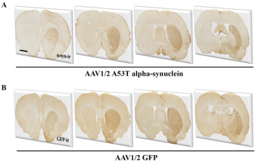 Expression of transgenes in the striatum. Both GFP and human alpha-synuclein were widely expressed throughout the striatum 3 weeks following delivery of AAV1/2 to the substantia nigra. Scale bar in panel A is 500 μm.