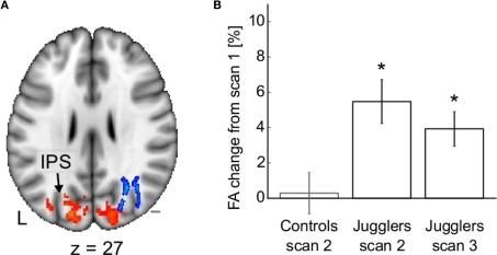 Structural changes after juggling training. (A) Fractional anisotropy (blue) and gray mater density (red) increase in occipito-parietal areas following the training period. (B) Mean fractional anisotropy change from scan 1 in the cluster shown in (A). Adapted from Scholz et al. (2009a) with permission.