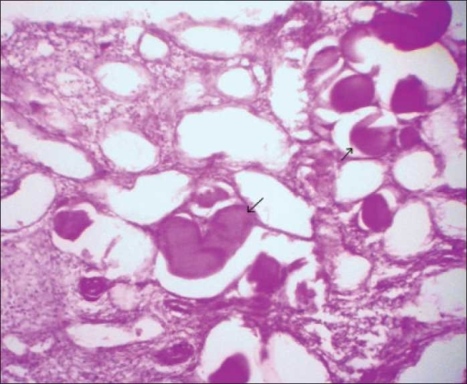Photomicrograph showing PAS-positive material within the dilated tubules (arrows) (PAS stain, ×40)