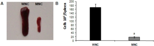 A. Spleens photography obtained from well-nourished (WNC) and malnourished (MNC) mice.B. Total spleen cell number from WNC and MNC mice. The weight of the spleens of WNC and MNC was 178±5 mg and 84±6 mg respectively.
