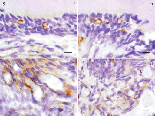 Immunohistochemical staining in the odontoblasts layers, positively stained small vessels are noted (a, b: 3 h-3 h, Bar 10 μm). The experimental dental pulp shows strong positive reactions in endothelial cells (c: 3 h-9 h, Bar 10 μm), weak positive staining in some dental pulp fibroblasts (d: 3 h-9 h, Bar 10 μm) are noted in the pulp chamber.