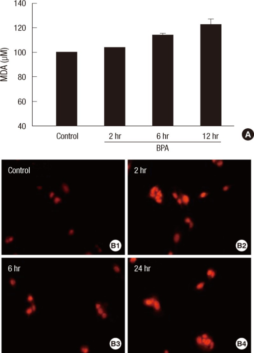 Oxidative stress in HepG2 cells treated with 100 nM BPA. (A) MDA concentrations determined by a TBARS assay kit. (B) Fluorescence after the ROS-sensitive indicator DHE staining. Control (B1), 2 hr (B2), 6 hr (B3), and 24 hr (B4) after the treatment of 100 nM BPA.