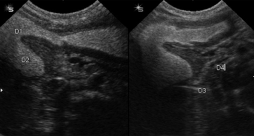 A 21-day neonate with bilious vomiting.Distended bulb (D1) and descending (D2) portions of the duodenum while horizontal (D3) and ascending (D4) portions of the duodenum are collapsed. Partial obstruction due to the web is nicely demonstrated.