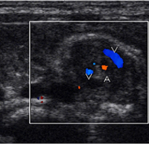 A 5-day male neonate with bilious vomitingTransverse color Doppler sonogram of the upper abdomen shows a whirlpool sign with a clockwise direction. Capital letter A indicates SMA and V indicate SMV.
