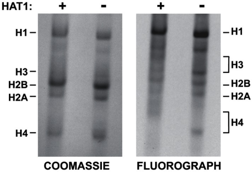 Hat1 is essential for the acetylation of newly synthesized histones.Hat1+/+ and Hat1−/− MEFs were pulse-labeled with 3H-lysine for 12 minutes. Histones were then isolated and resolved by Acid-Urea (AU) gel electrophoresis. Total protein was visualized with Coomassie blue staining and radio-labeled proteins visualized by fluorography (as indicated). The mobility of each histone is indicated. The brackets indicate the regions of mobility for the acetylated isoforms of histone H4 and histone H3.