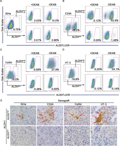 ALDHhigh cervical cancer cells are capable of differentiating in vitro and in vivoA-D, ALDHhigh and ALDHlow cells were isolated from the SiHa (A), C33A (B), CaSki (C) or HT-3 (D) cell lines and cultured in DMEM medium supplemented with 10% FBS for 2 weeks. The ALDH enzyme activity was then analyzed by flow cytometry. Cells treated with DEAB served as a negative control. The gated cells represent the ALDHhigh cells. E, Expression of ALDH1 was detected by IHC in xenograft tumors from ALDHhigh and ALDHlow cells. Red arrows indicate ALDH1-positive cells