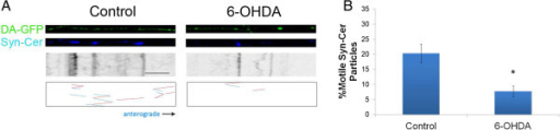 "6-OHDA also decreases synaptic vesicle movement in DA axons. A) DA-GFP cultures (Top panels) in microdevices were transduced with Syn-Cer lentivirus (Middle panels) at DIV2. Vesicular movement was assessed on DIV12–13 before and after toxin treatment. Resulting kymographs are shown below. Because of the smaller size of vesicular particles and the relative ""dimness"" of the cerulean emission, tracks of moving particles are shown in bottom panels for clarity. Red represents retrograde movement whereas blue is anterograde trafficking. B) Quantification of moving vesicles was determined as described in Materials and Methods. Scale bar: 5 μm. Mean ± SEM, total of 8 (control) and 8 (6-OHDA-treated) axons from 5–7 devices per group. * indicates p < 0.05 versus control."