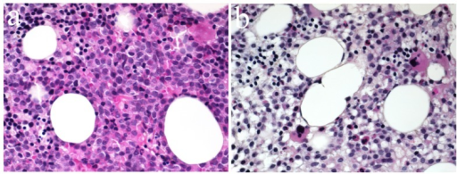 (a, b) Bone marrow biopsy result compatible with AML showing a hypercellular marrow with excess of immature myeloid cells and the presence of rare megacaryocytes.