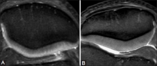 Axial FS T2W images of the patella targetted for cartilage imaging (A) large FOV (B) Small FOV. Note better delineation of chondral morphology in retropatellar cartilage when images obtained at a smaller FOV. Similarly, use of a small FOV for superficial structures like joints may help us improve spatial resolution and conspicuity of chondral based lesions