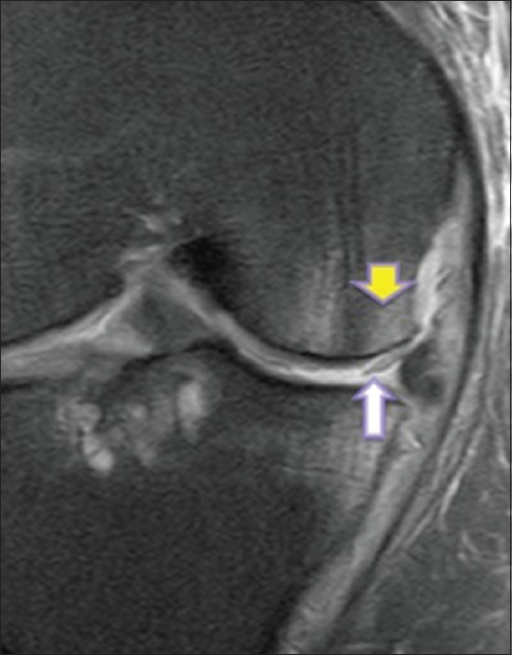 Hyperextension injury of knee sustained in a 20 year old man. Coronal FS PD-weighted image of knee joint shows a mildly displaced chondral flap (white arrow) involving the weight-bearing surface of the medial femoral condyle. There are kissing bone marrow contusions of the medial aspect of the anterior tibia and femur (yellow arrow) secondary to the hyperextension injury. Valgus stress occurring at the hyperextension injury resulted in the medial location of the kissing contusions