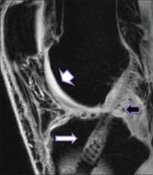 A 3D GRE, sagittal plane image of knee joint revealing articular cartilage. Note excellent details of articular cartilage. (short arrow) The additional advantage of this sequence is in imaging of joints with prior interventions or any grafts or screws fixations. (long arrow) Note the tiny blooming intensities (black arrow) around the BPB graft, likely postoperative bone fragments