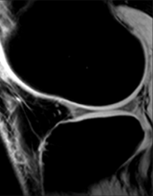 Sagittal 3D SPGR (TR/TE 14.1/5 ms) at flip angle 60° of knee provides excellent contrast between cartilage and subchondral bone along signal-intensity cartilaginous surfaces in tibiofemoral compartments