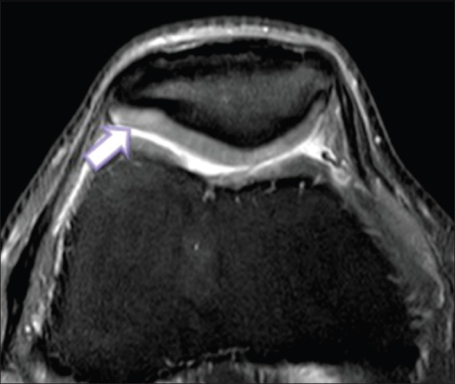 Axial image acquired with multiple-echo data image combination sequence shows grade 1 cartilage lesion. There is a focal area of chondral softening revealed as an area of focal hyperintensity (arrow) within the articular cartilage
