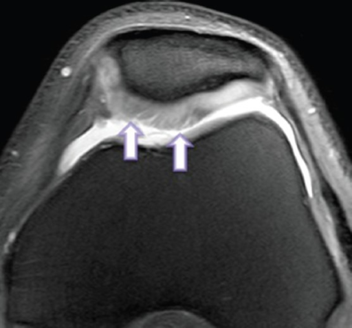 Axial 2D fat-saturated PD-weighted fast spin-echo image of knee joint in a 47 year old man shows arthroscopically confirmed superficial cartilage fibrillation (arrows) categorized as grade 2 cartilage lesion