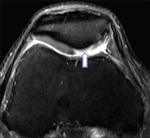 Axial fast spin-echo PD FS image in 39 year old man reveals a wide area of full-thickness chondromalacia (arrow) involving the median ridge and the medial patellar facet categorized as grade 3 lesion (fissuring of cartilage to level of subchondral bone) in the posterior aspect of the patella. The subchondral bone is not exposed, which discriminates this lesion from a grade 4 lesion
