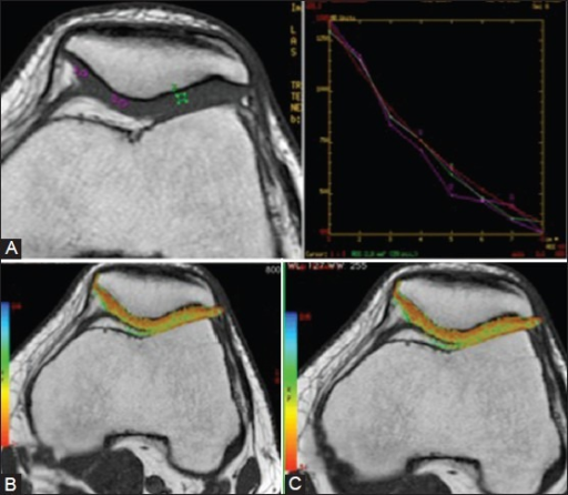 Axial T1 TSE image (600/6.6, NEX 2.0, 180° flip angle) of the retropatellar cartilage obtained in a volunteer reveals morphologically normal cartilage (A). Corresponding T2 maps for the early (B) and late unloading (C). Note no visible differences over time