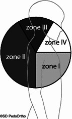 Labral tears were grouped into zones based on the location of the injury