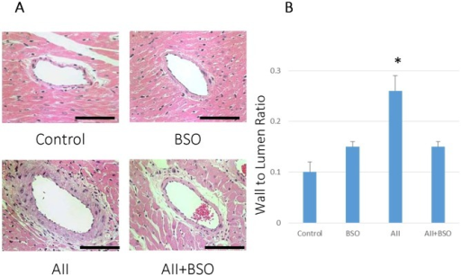BSO inhibited AII induced medial thickness of coronary artery.(A) The effects of AII and BSO on coronary arteries. Representative micrographs of cross sections of coronary arteries with hematoxylin and eosin staining. : magnification ×400, Bar indicates 100 µm. (B) Graphs shows coronary wall to lumen ratio. Bar graphs represent mean ± SD (*p<0.01 vs AII+BSO, n = 7 of each).