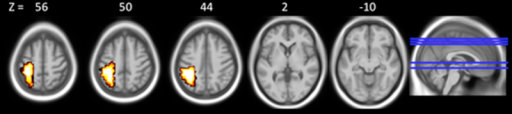 Areas of within group brain activation for VPT participants. Areas of within VPT group activation thresholded at voxel-level p < 0.05, cluster-level p < 0.01. Left side of images represents the left hemisphere of the brain.
